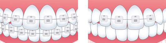 部分矯正 兵庫県尼崎市のかわばた矯正歯科